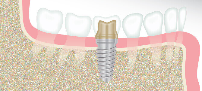 dental implants in cary - diagram