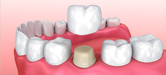 illustration of a dental crown