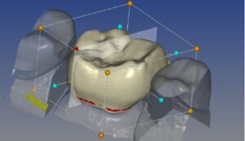 3d dental crowns technology