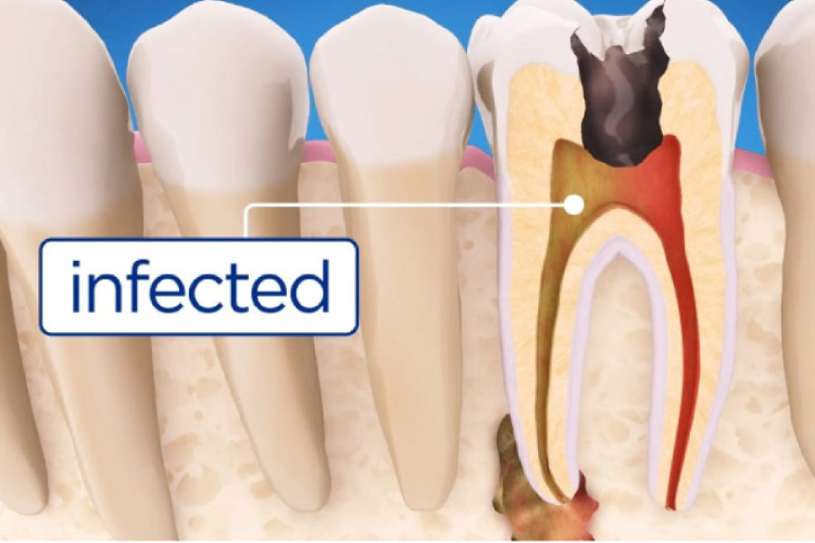 root canal infection illustration